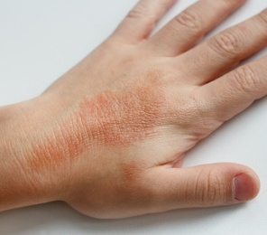 Skin Rash From Mold